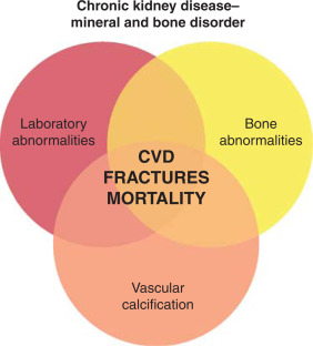Mineral and bone disorders in chronic kidney disease and end-stage